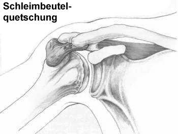 Physiotherapie bei Bursitis (Schleimbeutelentzündung)
